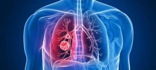 关于五台县新增新型冠状病毒感染的肺炎确诊病例的通告