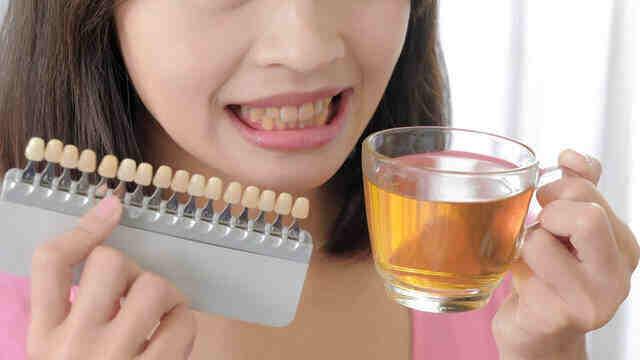 """牙缝里软软臭臭的""""黄泥"""",到底是啥?真实答案有点重口味"""
