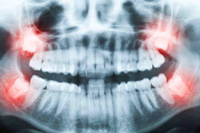 人类的进化并未停止!科学家意外发现人体新器官,或可帮助抗癌